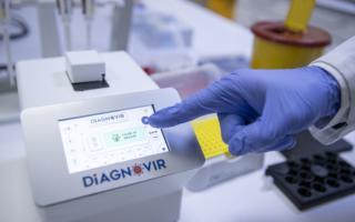 Олимлар коронавирусни 10 сонияда аниқлайдиган қурилма ихтиро қилди
